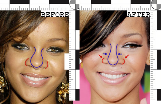 rihanna plastic surgery questions are always tempting on the one hand    Rihanna Before And After Nose Job