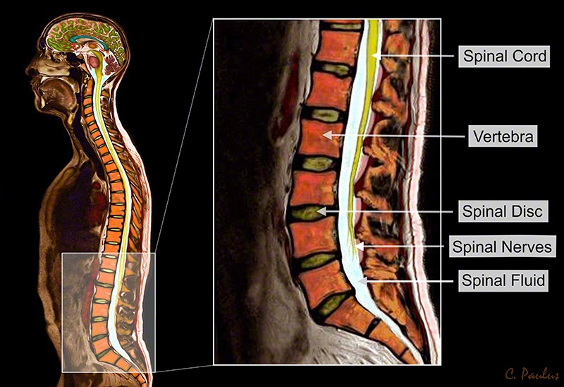 Annotated Color MRI Lumbar Spine Anatomy
