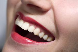 Ab Saude Saiba Como Manter Os Dentes Brancos Apos O Clareamento