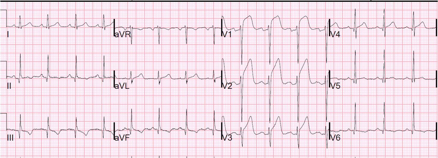 Acute myocardial infarction caused by left anterior ...