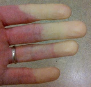My Hand With Raynaud's Disease