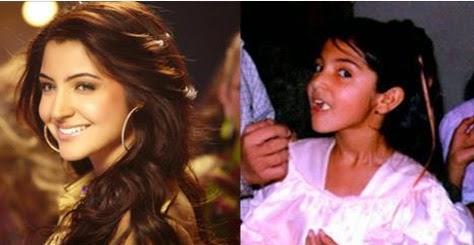 Anushka Sharma Unseen Childhood Birthday Pictures