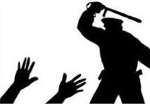 Policial agride covardemente morador em Gentio do Ouro: