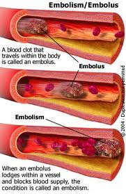 Fat embolism - causes and clinical manifestations Of fat embolism ...