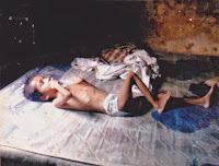 penyakit yang disebabkan karena tempat tidur