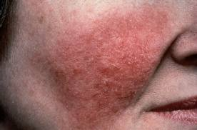 Scabies In Humans