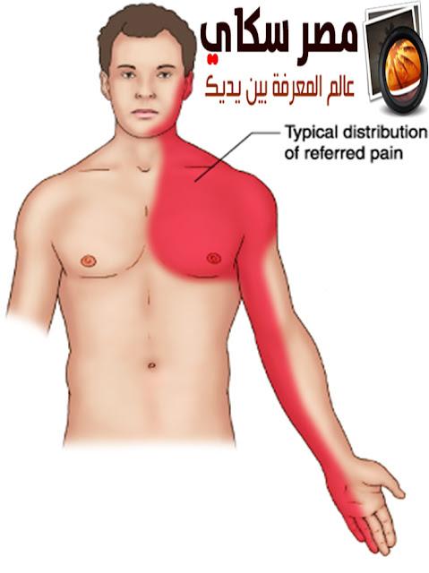 أهم العوامل التى تزيد من نسبة الإصابة بالذبحة الصدرية
