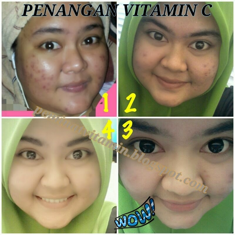 testimonial berjaya vitamin c