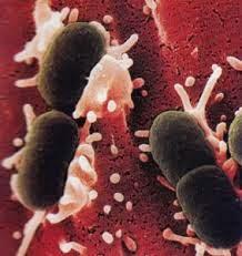 Obat Herbal Infeksi Saluran Kencing