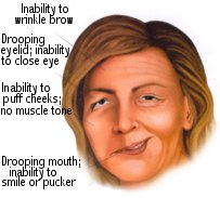 Clinical Manifestations of Bell's Palsy
