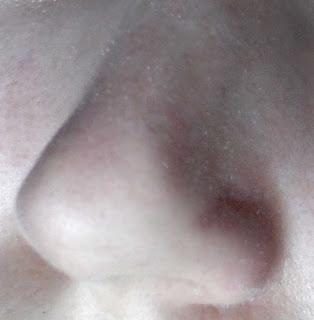 nariz sin puntos negros