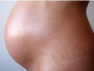 Encargar la crema de las manchas de pigmento el resplandor de la piel