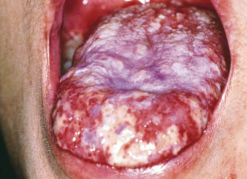 the nose eyes and central nervous system digestive tract along with    Cold Sore Under Tongue Treatment