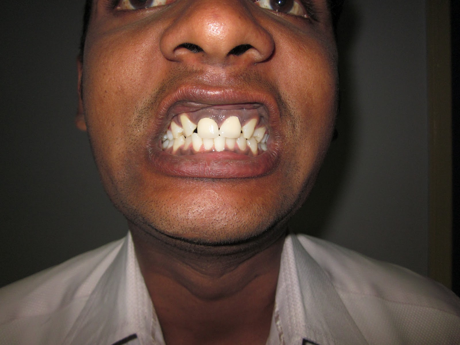 MANDIBLE AND LE FORT 1 FRACTURE MAXILLA - OUTCOME-3.bp.blogspot.com