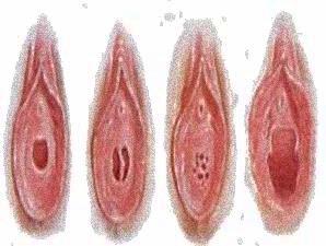 di sini ditampilkan gambar ilustrasi selaput dara vagina dari berbagai