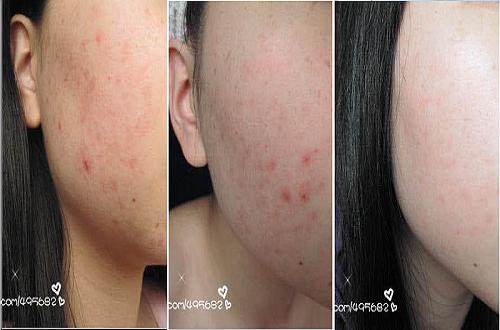 Bộ Mỹ phẩm Herbalife Skin hiệu quả sau 7 ngày sừ dụng với nữ