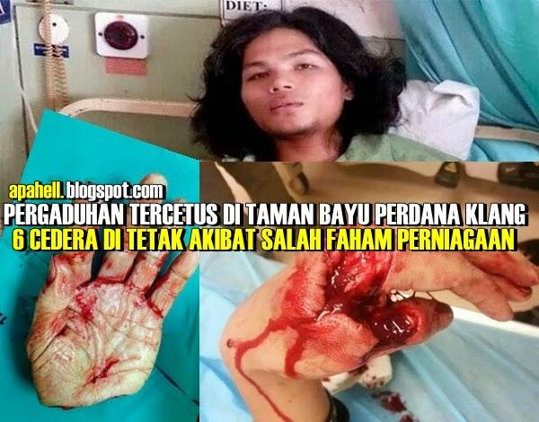 6 Ditetak Dalam Pergaduhan di Taman Bayu Perdana Klang (9 Gambar)