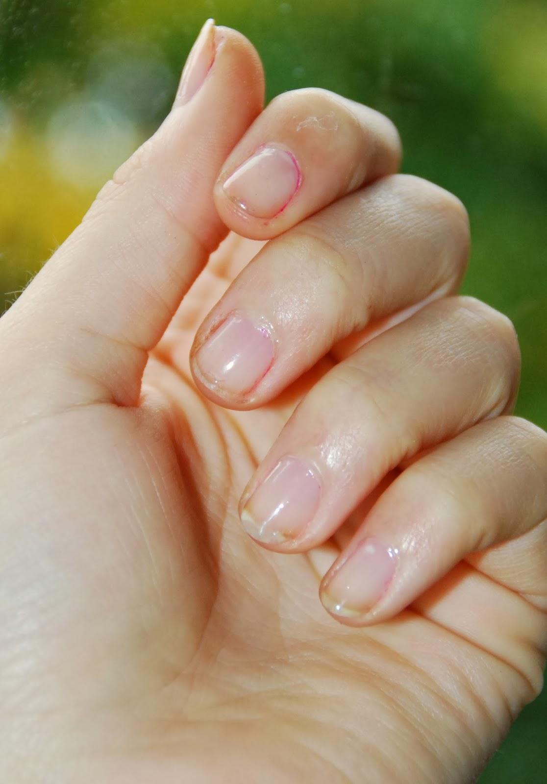 misfarvede negle efter neglelak
