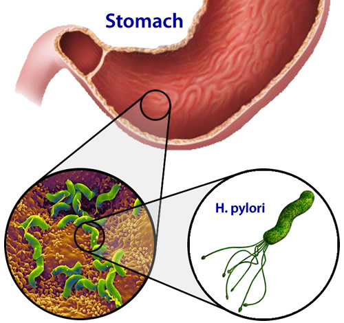 Dissertation h helicobacter infection pylori