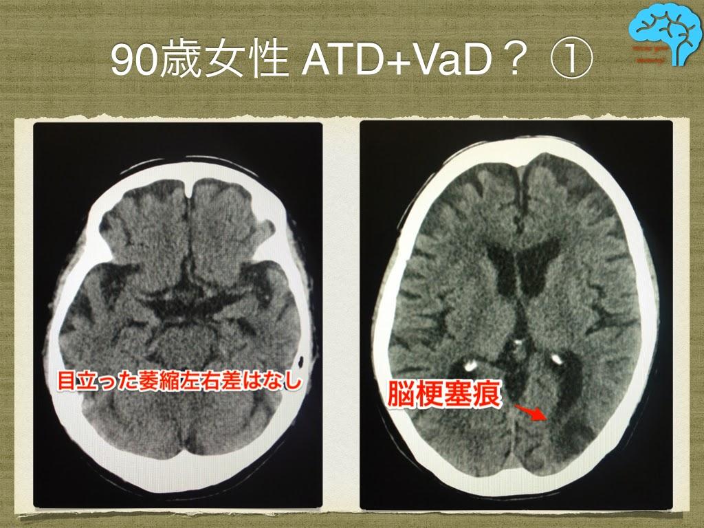 アルツハイマーと脳梗塞の合併