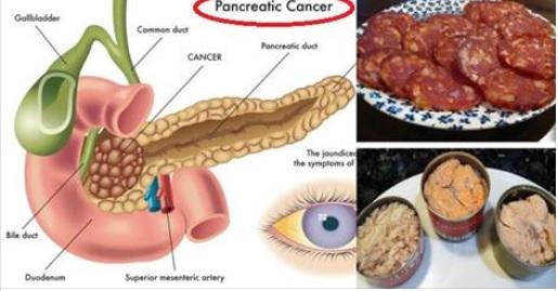 Los 14 alimentos que causan el cáncer que nunca deben poner en su boca de nuevo!!