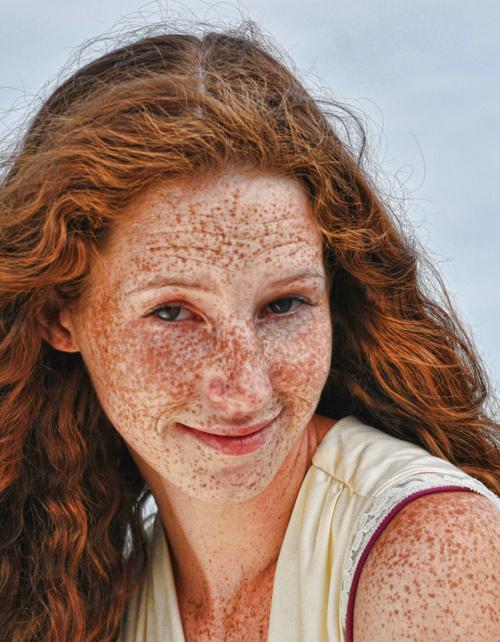 Descoramento de óleo de rádio de pele