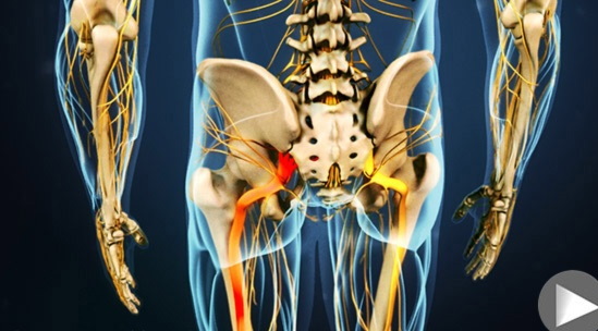 sciatic-nerve-new-and-remedy