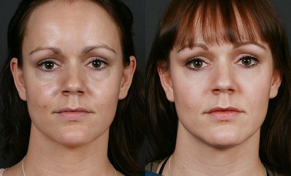 Eye Bags Form Because Of Tiredness Stress And Fatty Deposits Forming Beneath The Eyes When Face Restoration Exercise Remedies Meet Lose