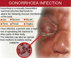 Cara Pencegahan Dan Pengobatan Penyakit Gonore