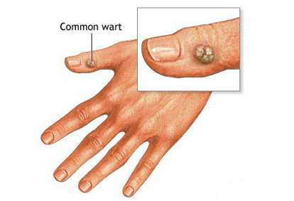 Traditional Ways To Cure Diseases Warts