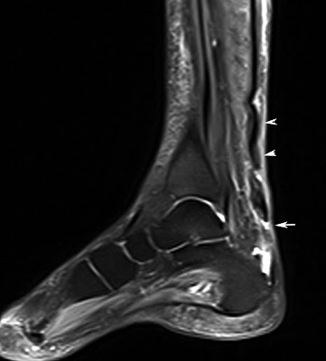 ruptured tendoachilles STIR edema