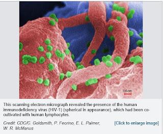 candidiase esofagica tem cura