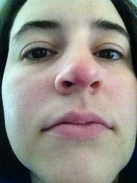 staph infection in the nose