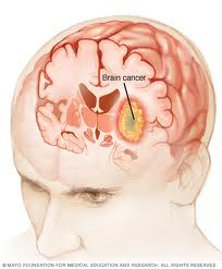 Brain Cancer Picture