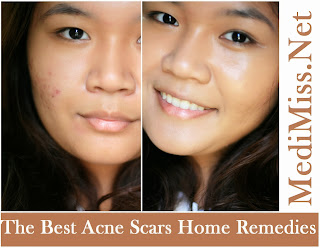 The Best Acne Scars Home Remedies