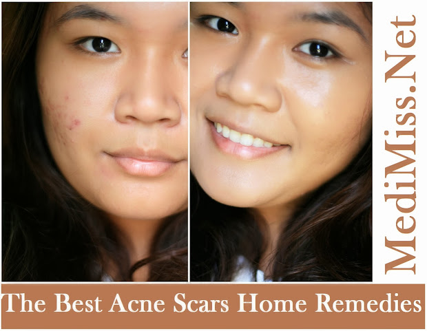 the best home remedy for acne