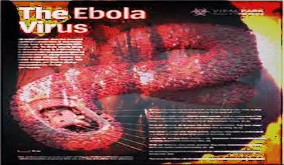 Ciri Manusia Terkena Virus Ebola dan Penybab Infeksi Penyakit Ebola