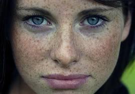 Comprar las máscaras que blanquean para la persona de las manchas de pigmento