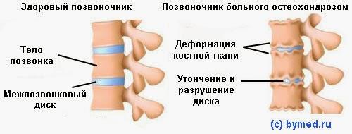 Остеохондроз сводит живот справа