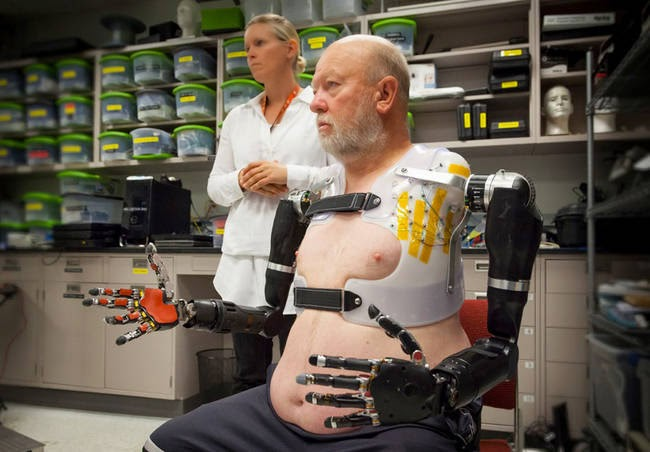 To get used to his new arms, Baugh underwent (and continues to undergo) a series of exercises. - This Man Lived Without Arms For 40 Years, And Now He Has New Ones