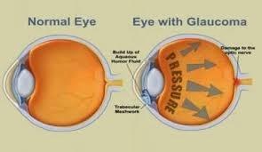 Obat Ampuh Penyakit Glaukoma Dengan Bahan Alami