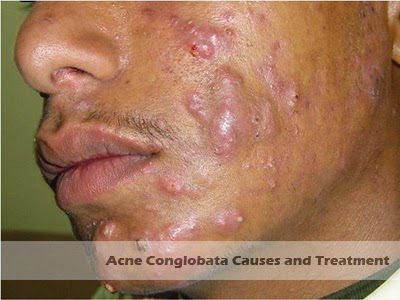 acne conglobata causes treatment