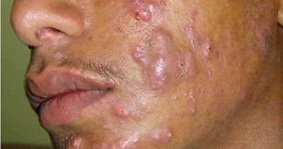 causes and treatment of acne essay Acne - an easy to understand guide covering causes, diagnosis, symptoms, treatment and prevention plus additional in depth medical information.