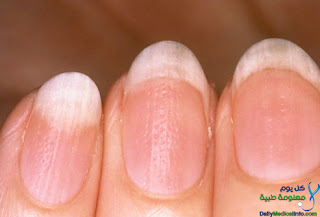 بالصور اظافرك عنوان صحتك Nails+(4)