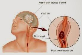 gejala kolesterol tinggi dan pengobatannya