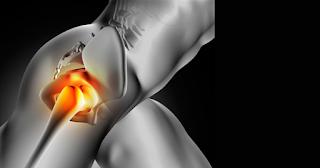 Pilates no tratamento de lesões no Quadril