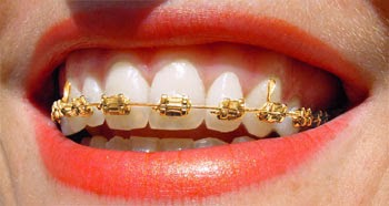 Golden Braces