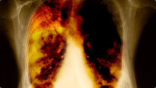 Researchers Discover 'Highly Effective' Biomarker For Lung Cancer