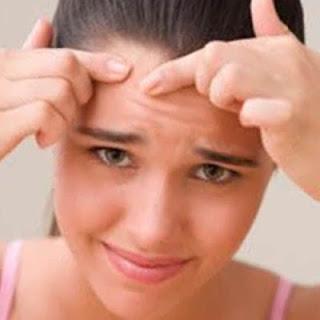 Cara Mengatasi dan Menghilangkan Jerawat di Wajah