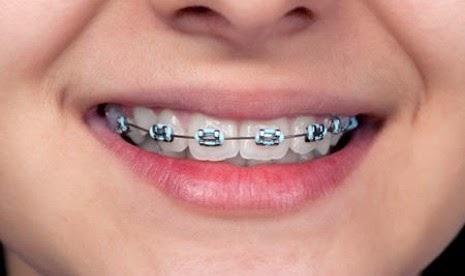 Tips Perawatan Gigi Yang Menggunakan Behel Tips Cara
